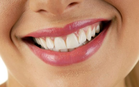 5 Things You Should Remember If You're Getting Veneers
